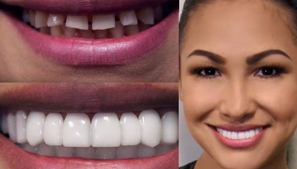 instawhite-snap-on-smile-top-teeth-for-women-snap-on-smile-honey-locker-10826171973716